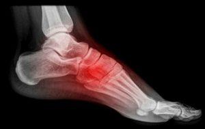 Перелом стопы: сколько ходить в гипсе?