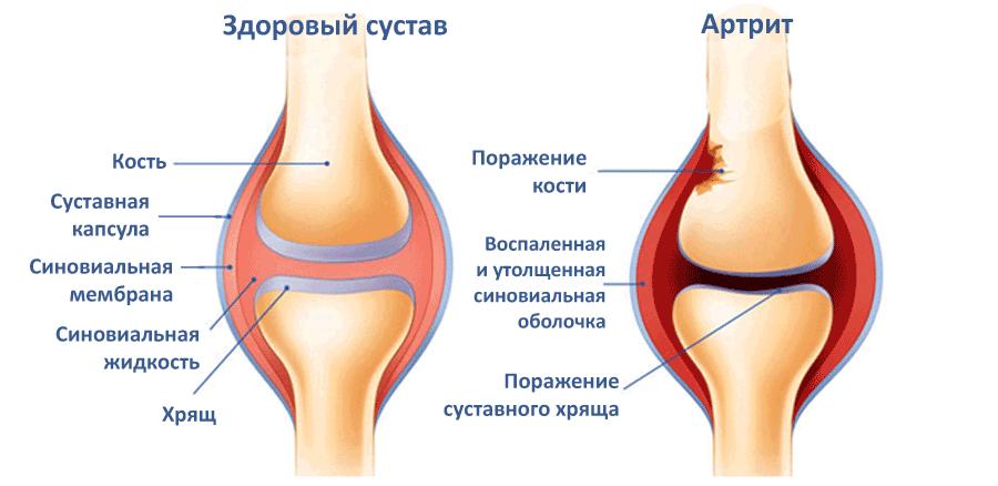 Патологические изменения при артрите