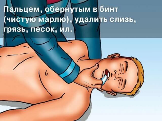 Первая помощь при травмах челюсти