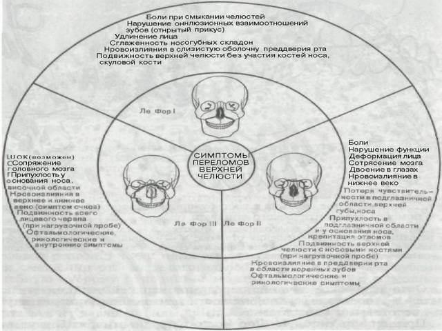 Схема разных переломов челюсти