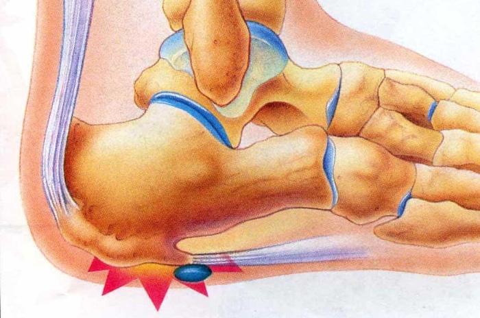Как лечить ушиб пятки после прыжка в домашних условиях