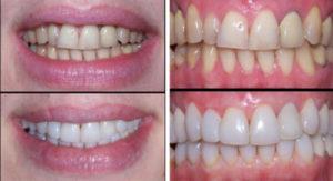 виниры можно поставить на передние зубы