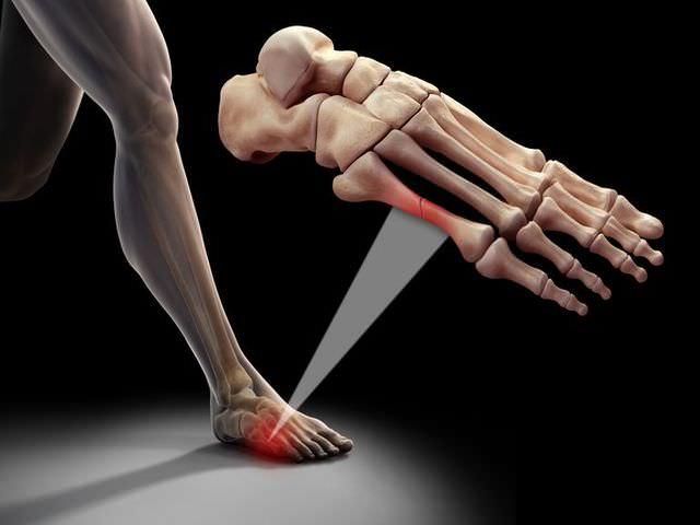 Травма кости на стопе человека