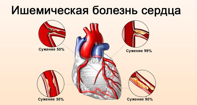 Ишемическая патология сердца