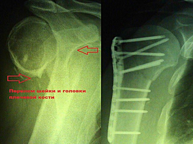 Сращение костей