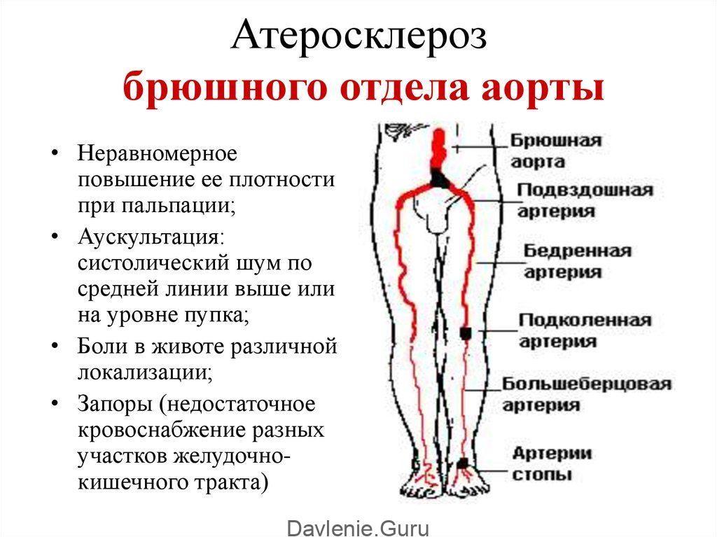 Атеросклероз аорты брюшной отдел