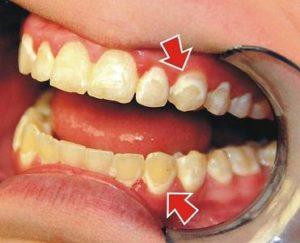 Налет на зубах: основные причины