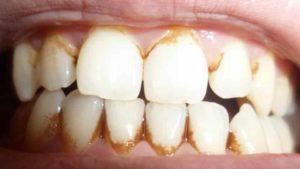удаление налета на зубах в домашних условиях