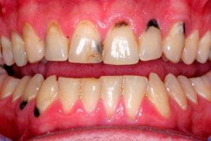 Почему появляется налет на зубах и способы избавления от него