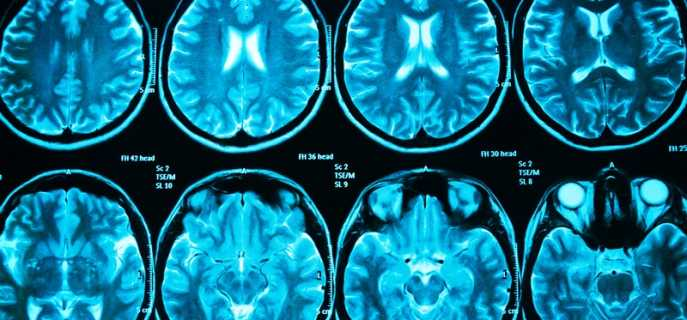Причины и симптомы энцефалопатии головного мозга