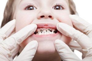 Средства-спасатели от зубной боли