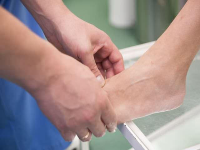 как лечить артроза суставов стопы