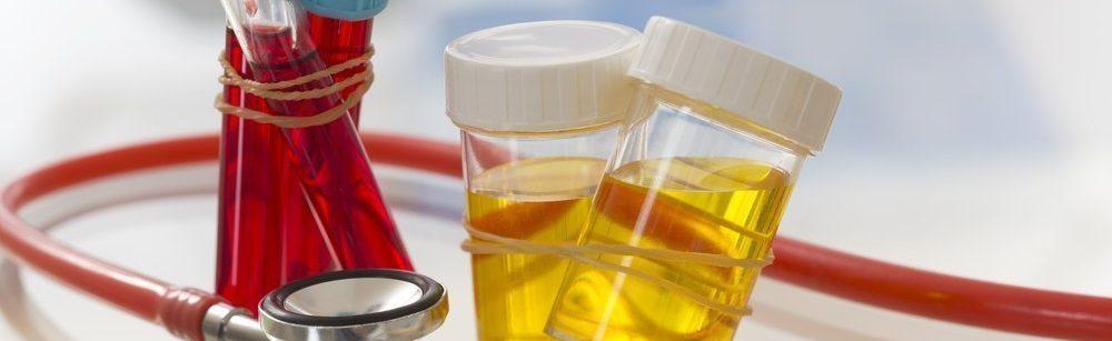 Лабораторные анализы крови и урины
