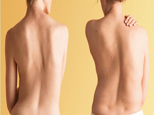 Левосторонний сколиоз грудного и поясничного отдела