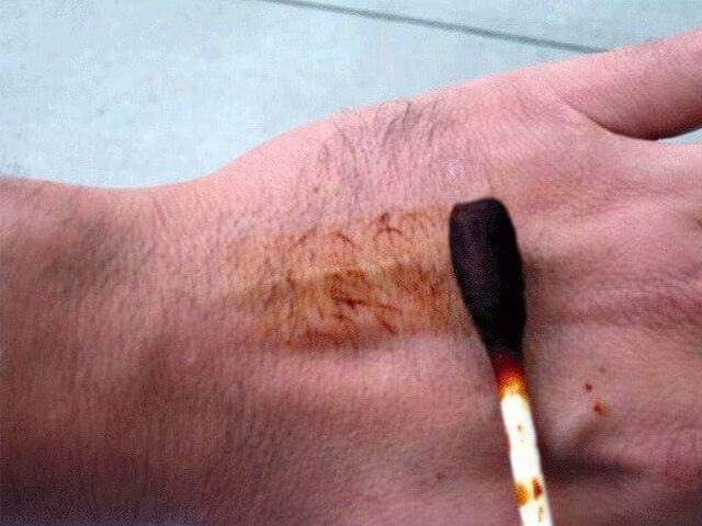 Нанесение йода на кожу рук