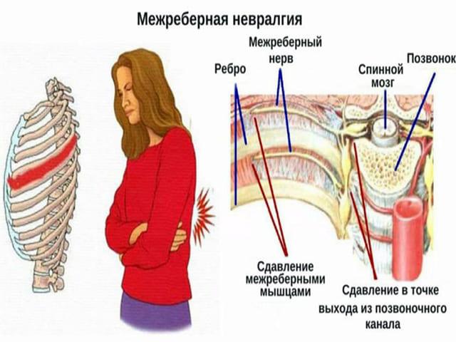 Что нужно знать о межреберной невралгии
