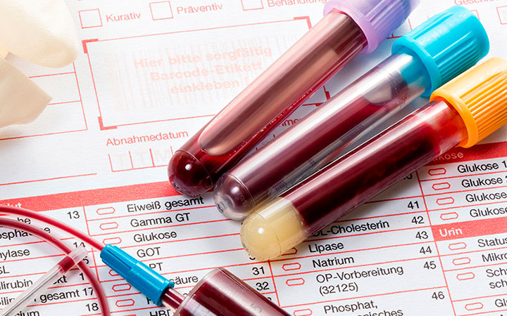 Анализ крови на гемоглобин