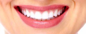 лазерного отбеливания зубов
