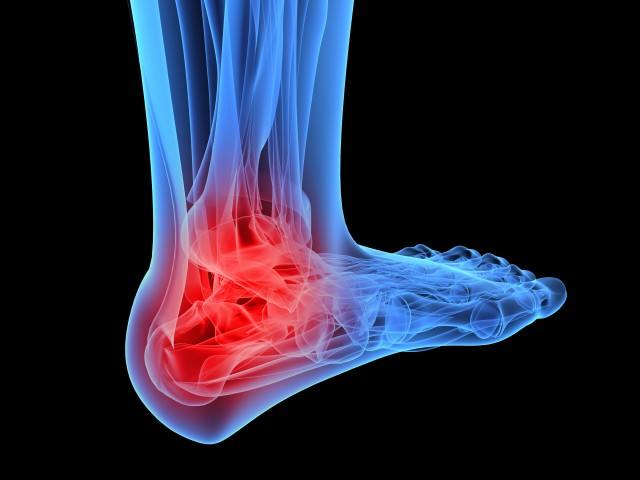 Повреджение лодыжки на ноге