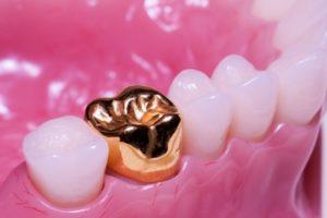 коронки лучше ставить на передние зубы
