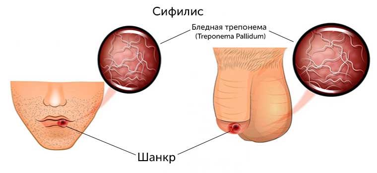 Симптомы сифилиса у мужчин