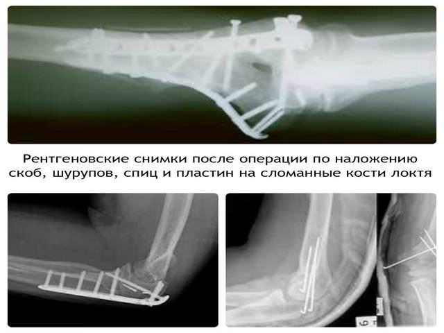 Снимок после операции на руку