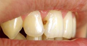 Как распознать и лечить скрытый кариес зубов