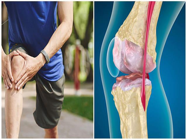 Основные причины боли в коленном суставе