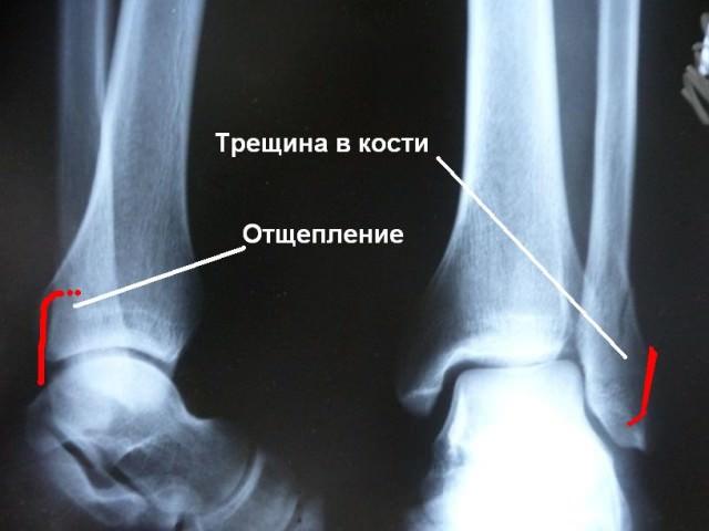 Рентген повреждения костей ног