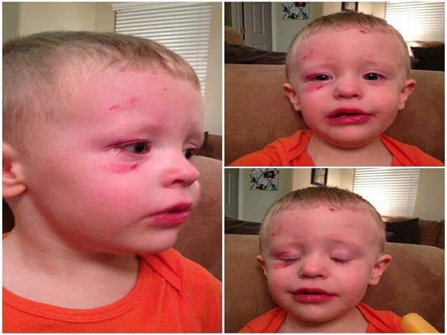 Травма ребенка