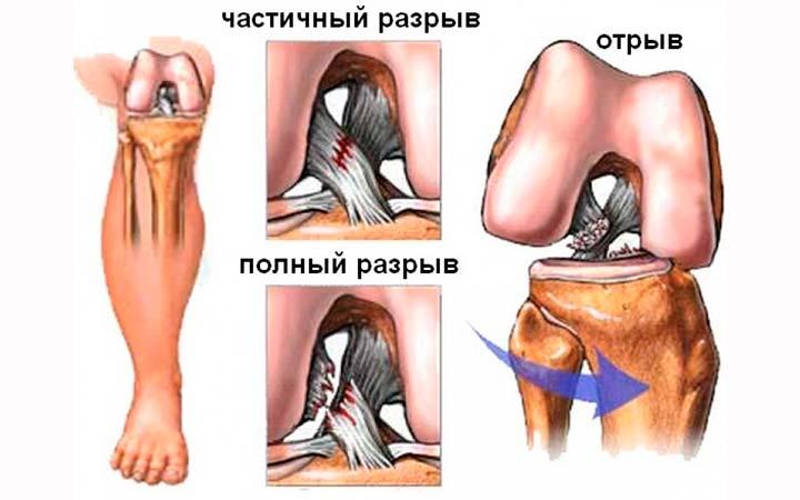 Разрывы мышечной ткани