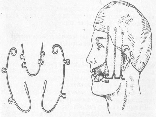 Наложение специальной шины на переломанную челюсть