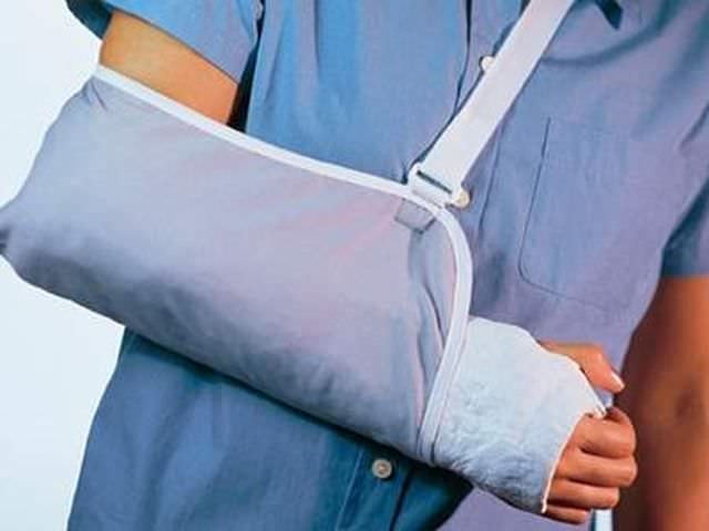 Помощь при переломе руки