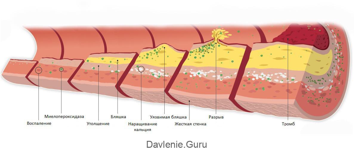Атеросклеротические бляшки в сосудах