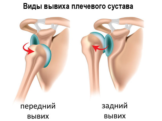 Схема травмы плеча