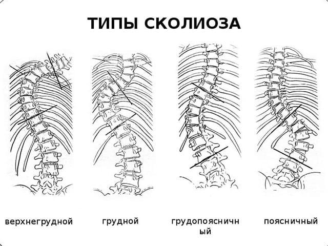 Типы заболевания