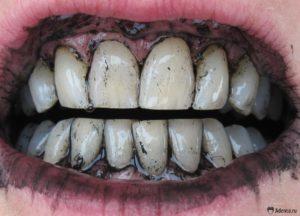 Как проводится отбеливание зубов Активированным углем в домашних условиях