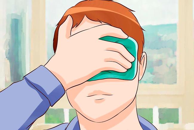 Чем лечить ожог глаз от сварки