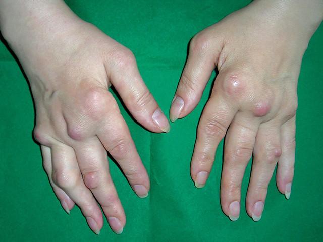 Поражение суставов рук