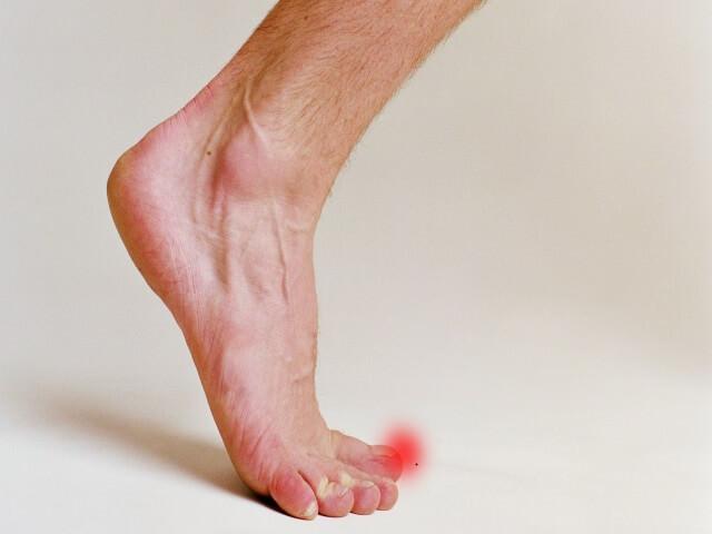 Травма ноги: симптомы