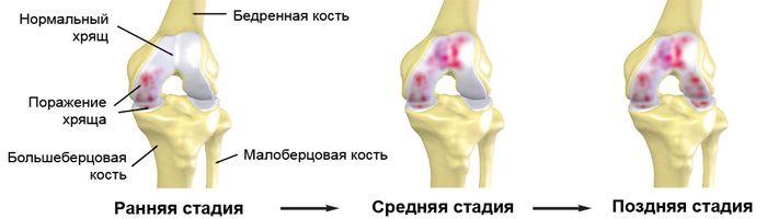 Стадиии артроза коленного сустава