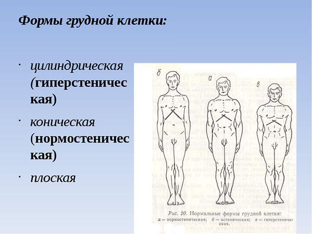 Разновидности форм
