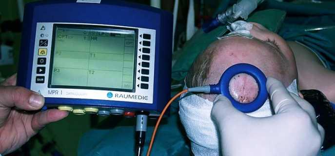 Способы измерить внутричерепное давление