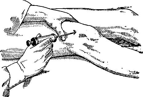 Пункция коленного сустава при бурсите