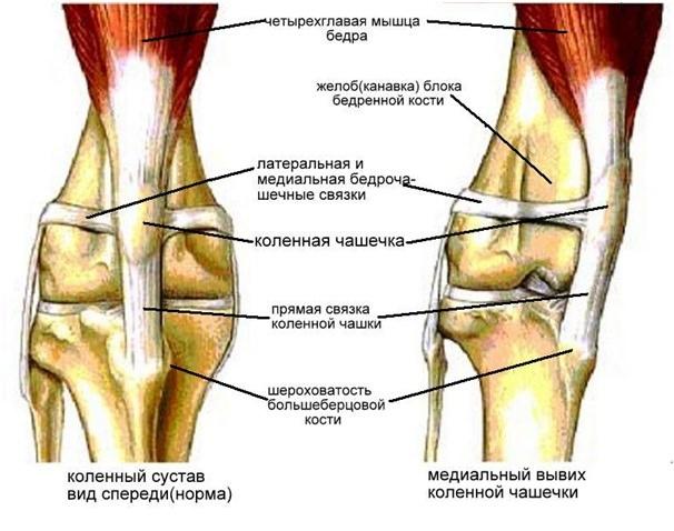 Фото здоровой и смещенной коленной чашечки