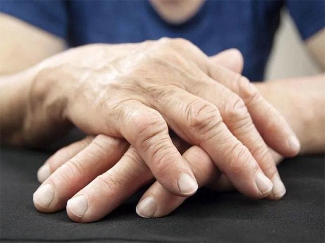 Симптомы и методы лечения ревматоидного артрита пальцев рук
