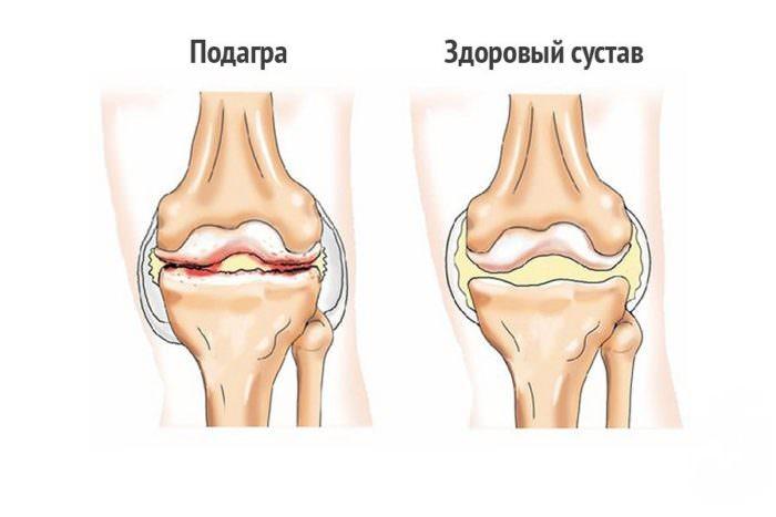 Подагрическая болезнь в колене