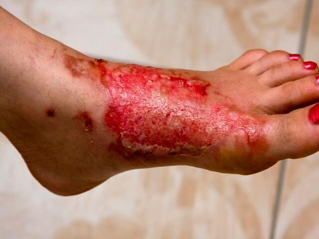 Нога после термического повреждения