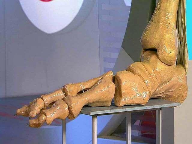 Макет нижней части ноги