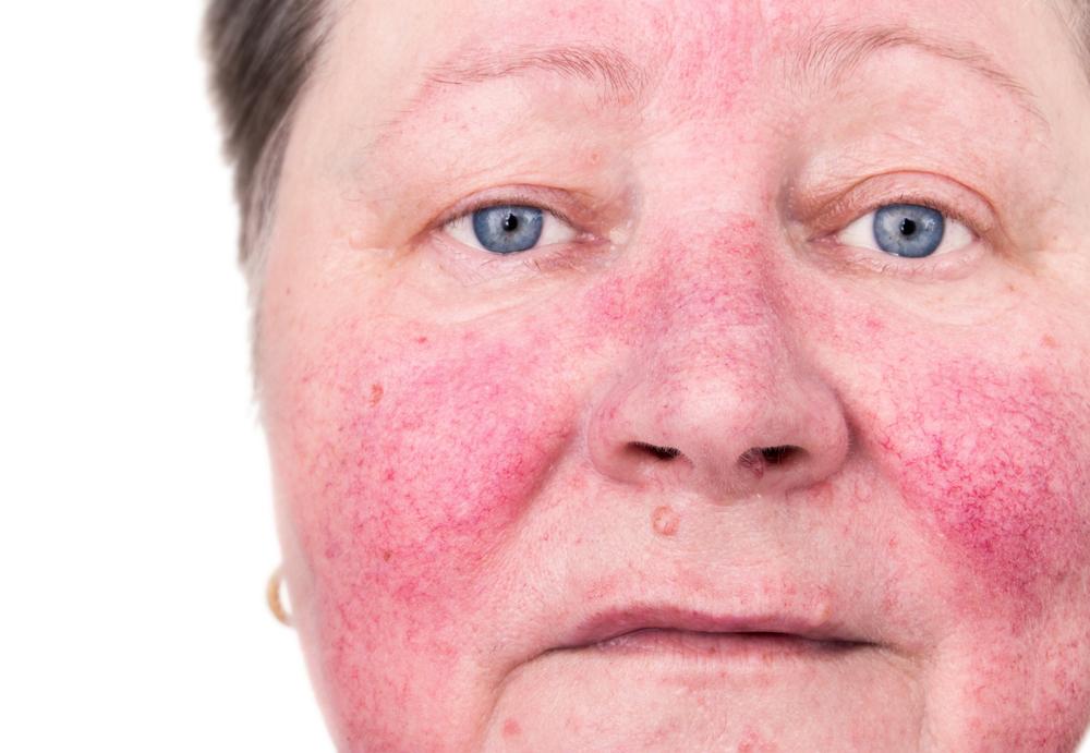 Покраснение кожи лица